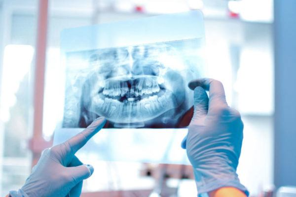 ortodonciarivero_cirugia_bucal_02