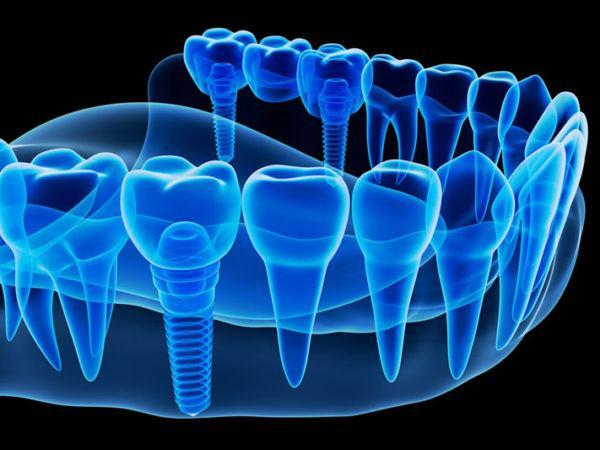 ortodonciarivero_cirugia_bucal_04