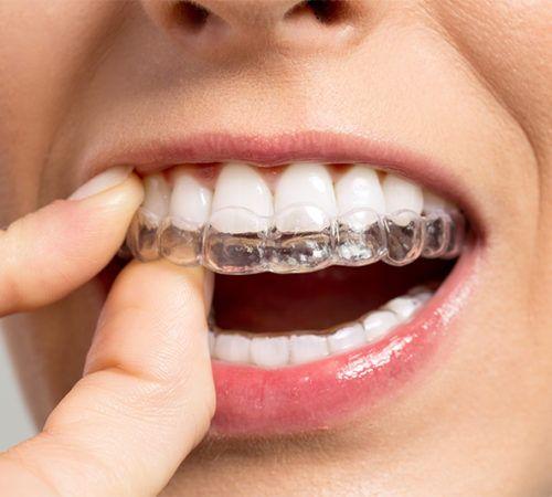 ortodonciarivero_servicios_invisalign-5