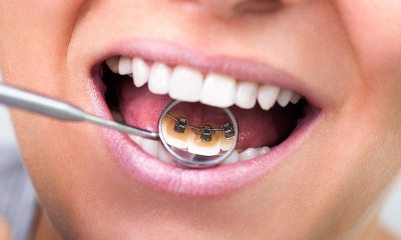 ortodonciarivero_servicios_lingual