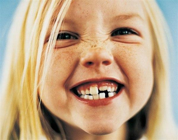 ortodoncia en niños madrid