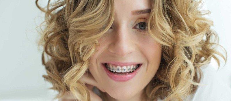 ortodoncia madrid precios