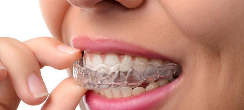 ortodoncia-rivero-slider-atm-tratamiento-4