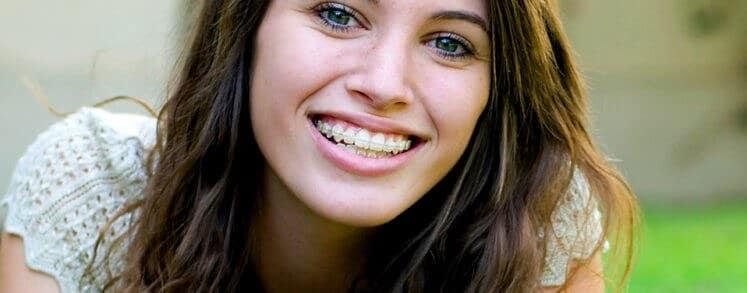 ¿Es mejor el tratamiento de ortodoncia con brackets o invisalign?