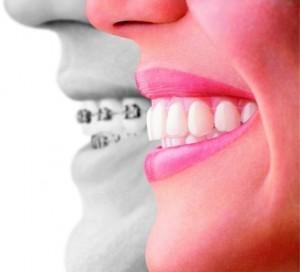 biomecanica ortodoncia