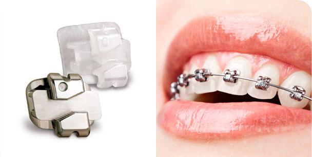 el mejor ortodoncista